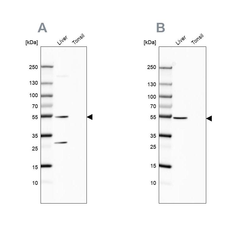 HGD Antibody in Western Blot (WB)
