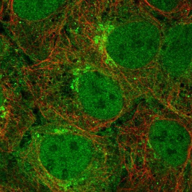 T176B Antibody in Immunofluorescence (IF)