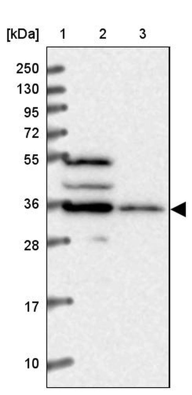 T176B Antibody in Western Blot (WB)
