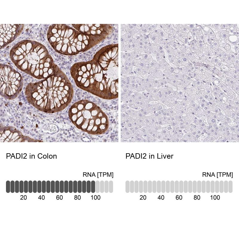 PADI2 Antibody in Relative expression