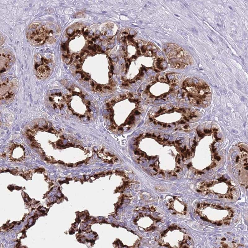 B4GALT2 Antibody in Immunohistochemistry (IHC)