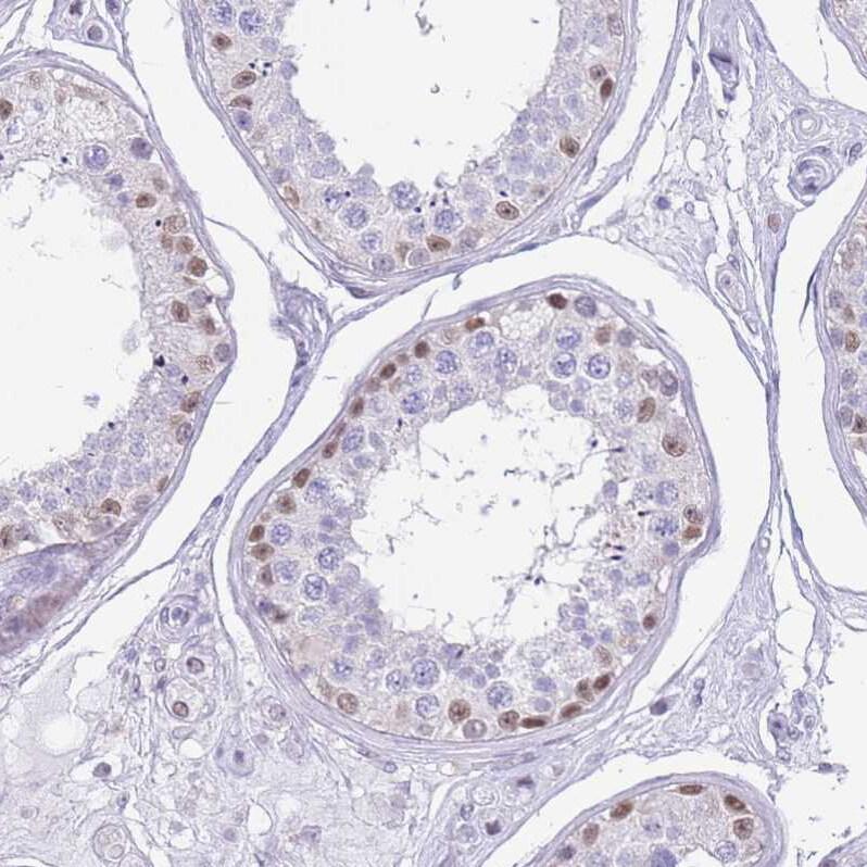 PPP1R17 Antibody in Immunohistochemistry (IHC)