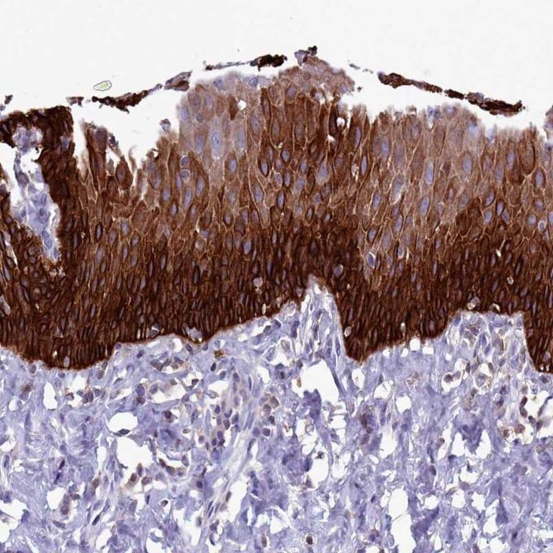 RAC1/RAC2/RAC3 Antibody in Immunohistochemistry (IHC)