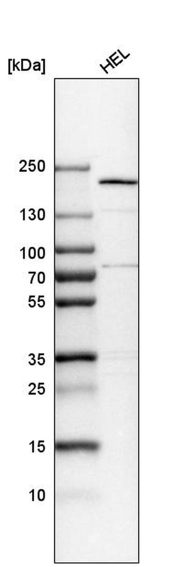THOC2 Antibody in Western Blot (WB)