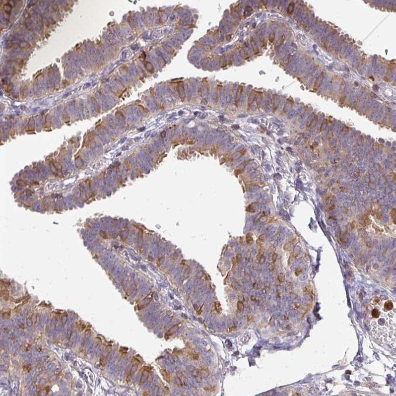 CSF3R Antibody in Immunohistochemistry (IHC)
