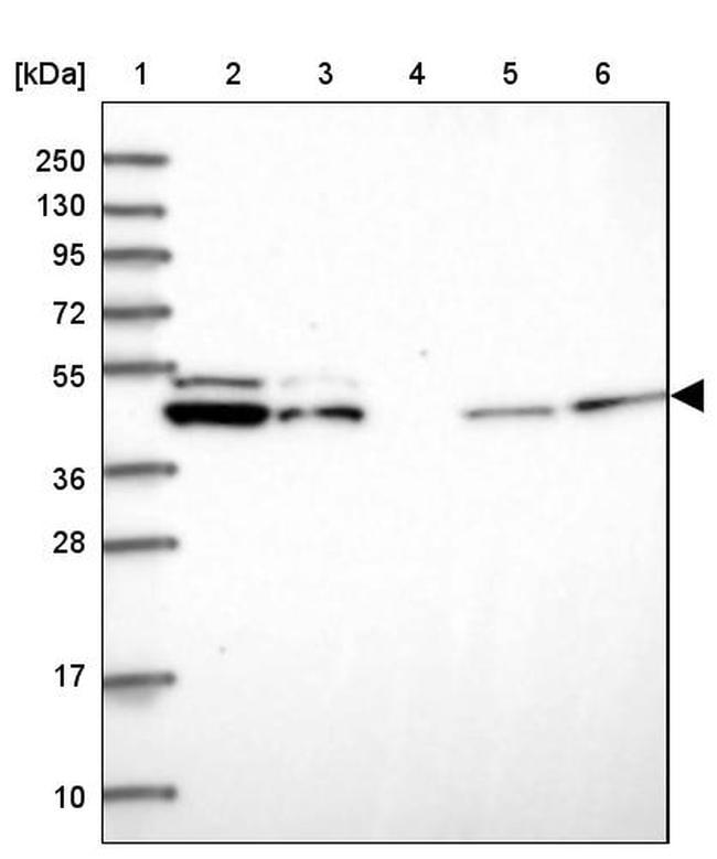 DDX49 Antibody in Western Blot (WB)