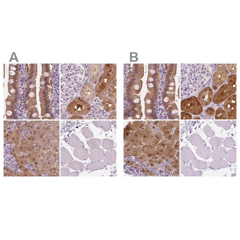 DAK Antibody in Immunohistochemistry (IHC)