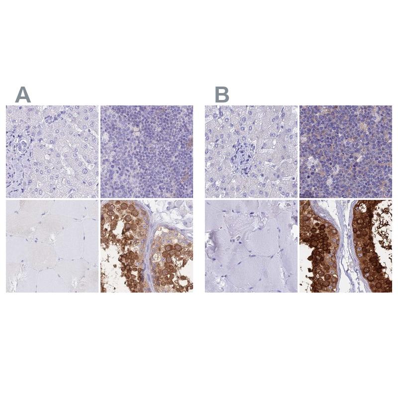 LZTFL1 Antibody in Immunohistochemistry (IHC)