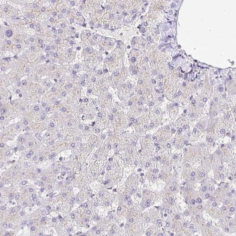 Nhe-1 Antibody in Immunohistochemistry (IHC)