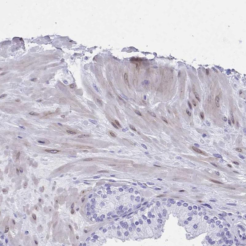 TMM35 Antibody in Immunohistochemistry (IHC)