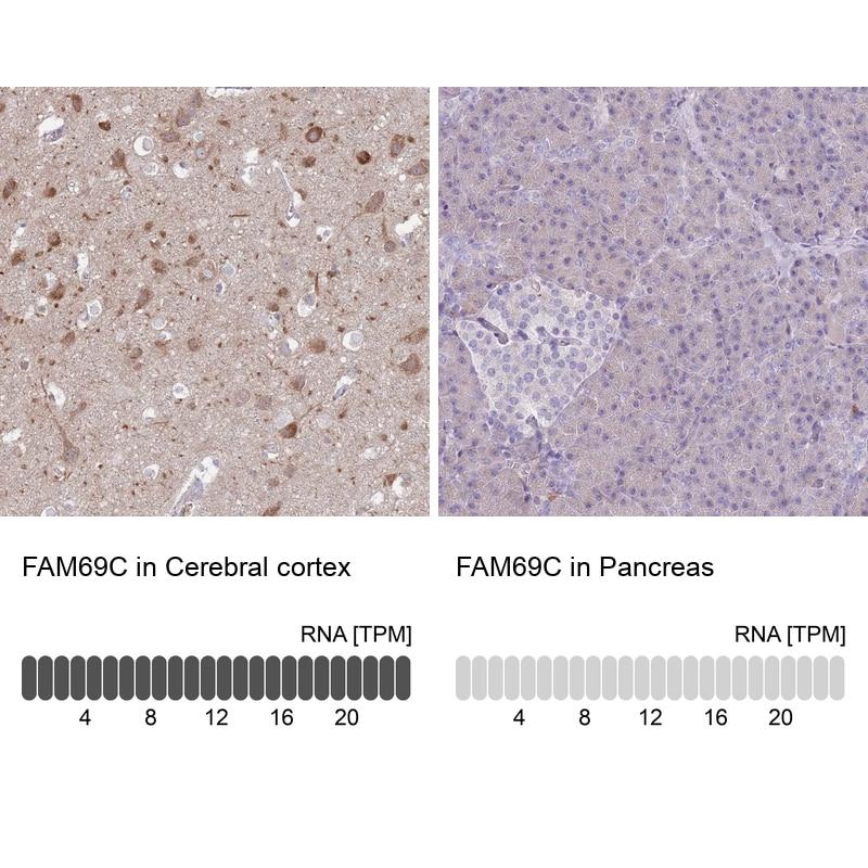 FAM69C Antibody in Immunohistochemistry (IHC)