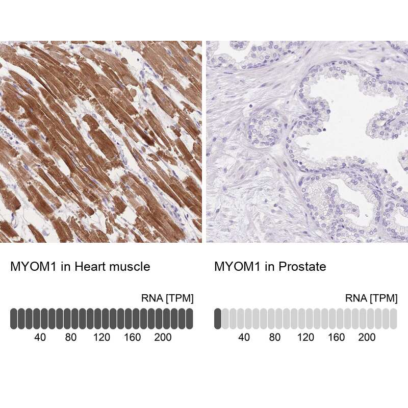MYOM1 Antibody in Immunohistochemistry (IHC)
