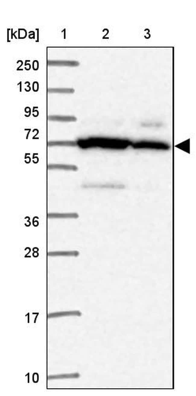 SMPD4 Antibody in Western Blot (WB)
