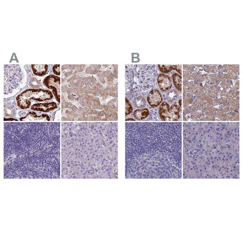 Adenylate Kinase 4 Antibody in Immunohistochemistry (IHC)
