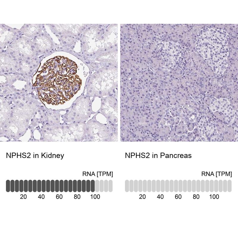 Podocin Antibody in Relative expression