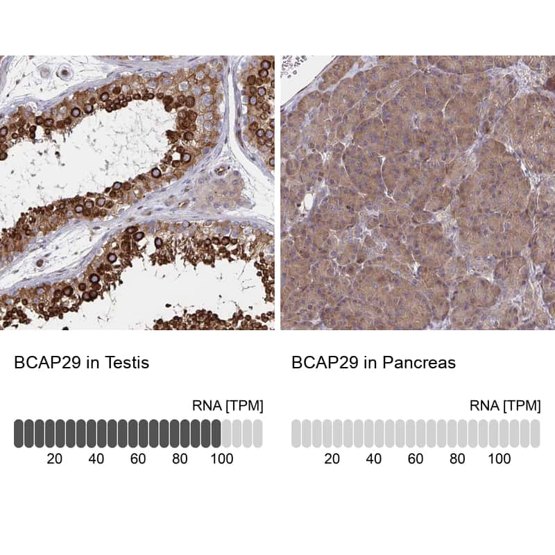 BAP29 Antibody in Relative expression