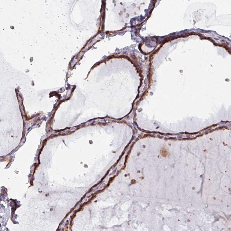 MAGT1 Antibody in Immunohistochemistry (IHC)