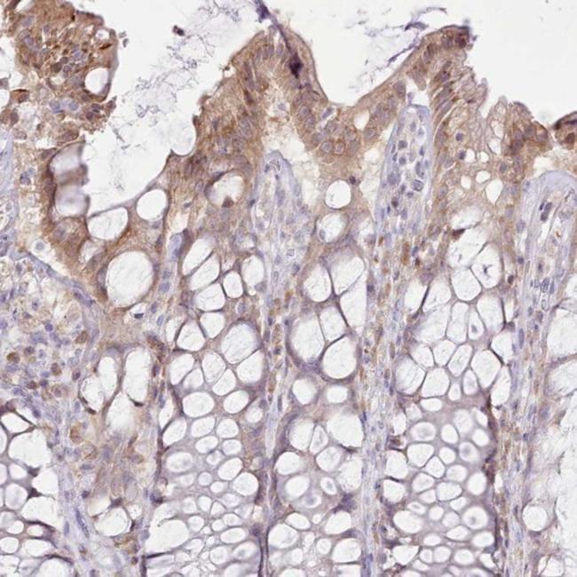 CCL1 Antibody in Immunohistochemistry (IHC)