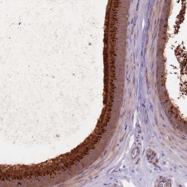 EDDM3A Antibody in Immunohistochemistry (IHC)
