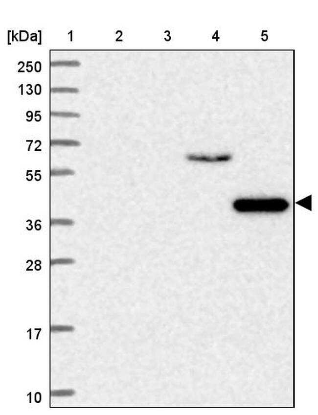 SLC25A33 Antibody in Western Blot (WB)