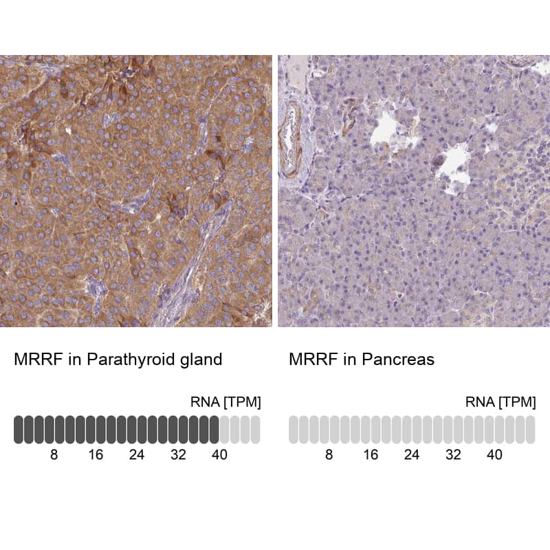 MRRF Antibody in Relative expression