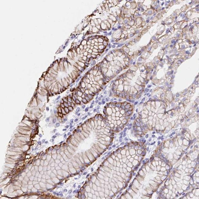 VSIG2 Antibody in Immunohistochemistry (IHC)