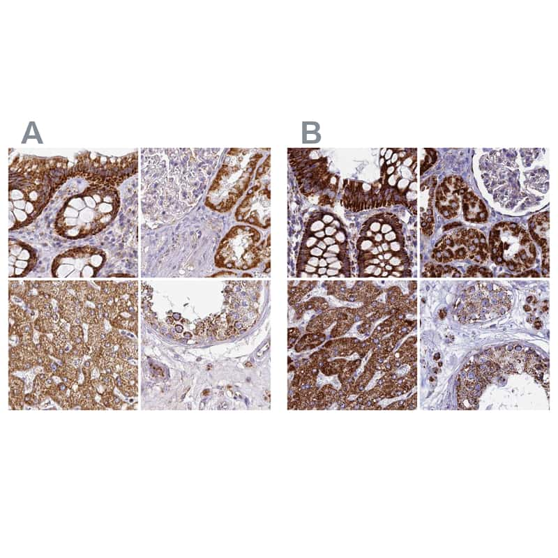 UQCRFS1 Antibody in Immunohistochemistry (IHC)