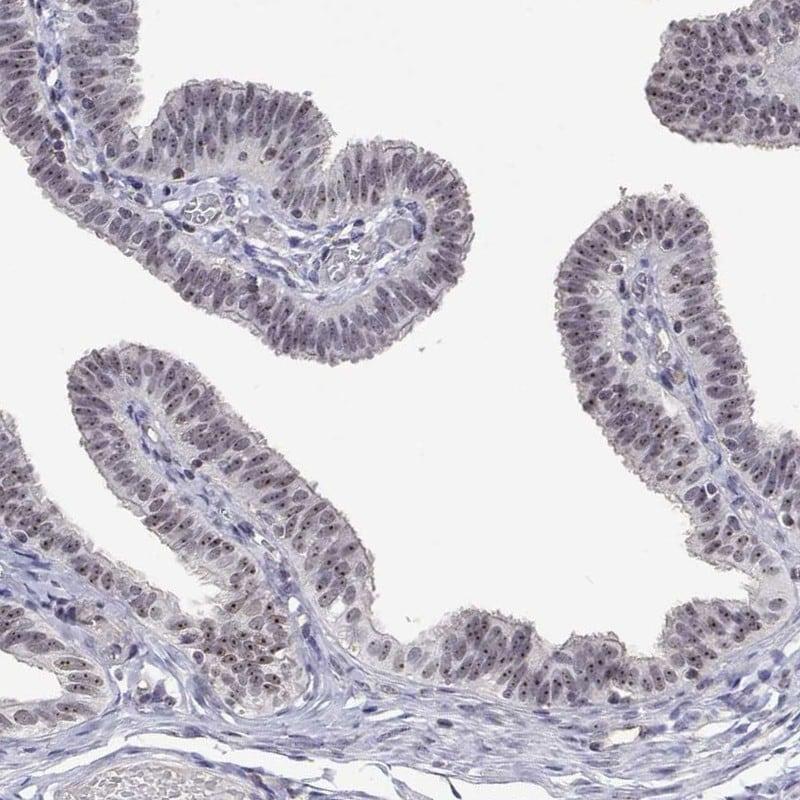 NHP2 Antibody in Immunohistochemistry (IHC)