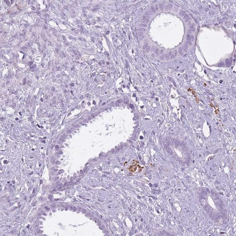 RFX4 Antibody in Immunohistochemistry (IHC)
