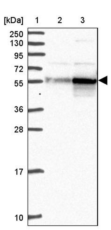 CAP2 Antibody in Western Blot (WB)