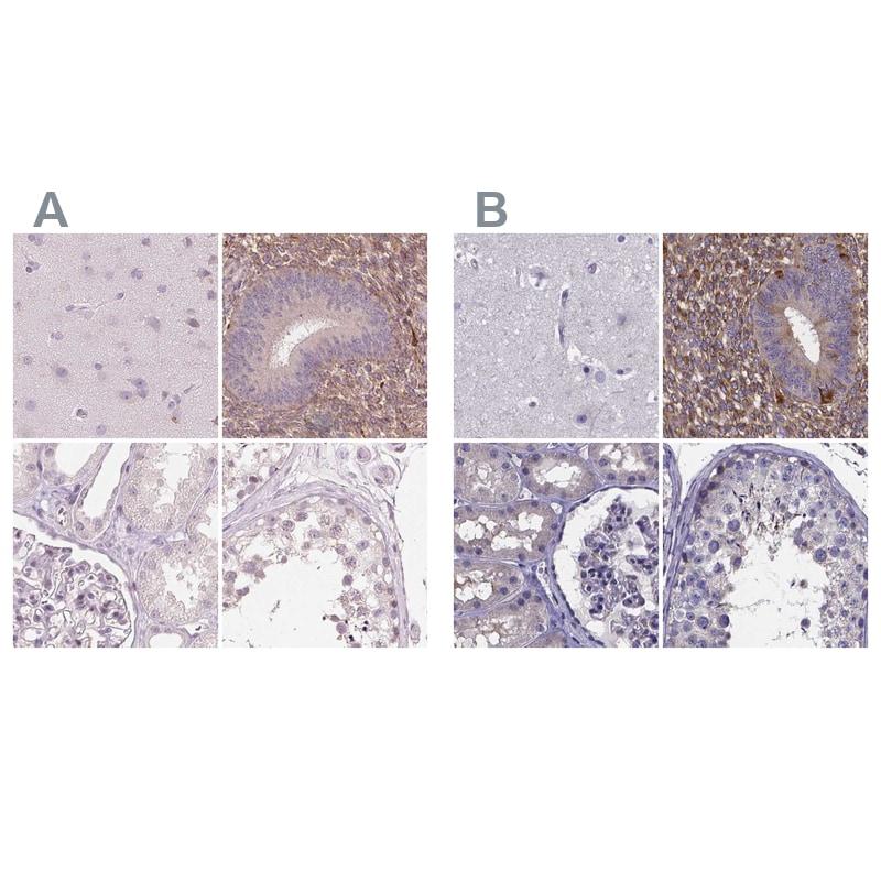 SFRP4 Antibody in Immunohistochemistry (IHC)