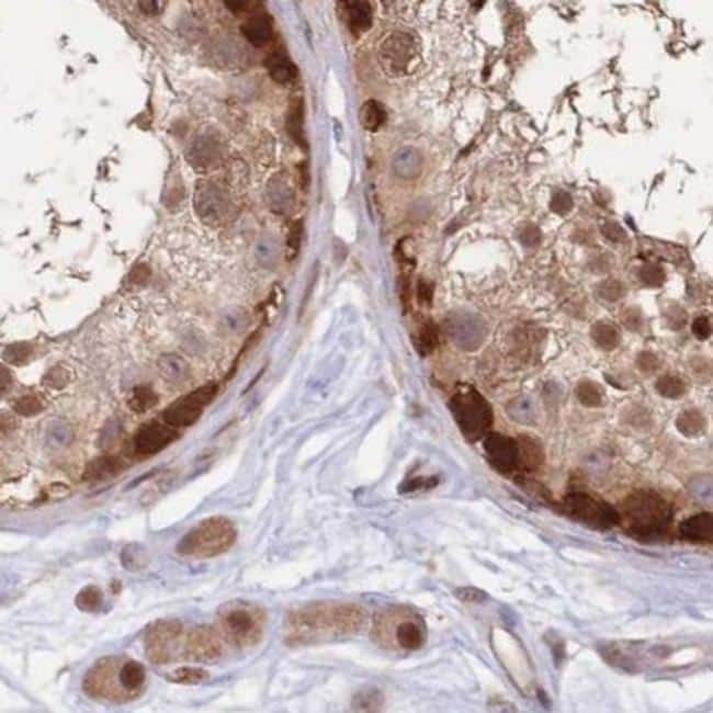 NSFL1C Antibody in Immunohistochemistry (IHC)