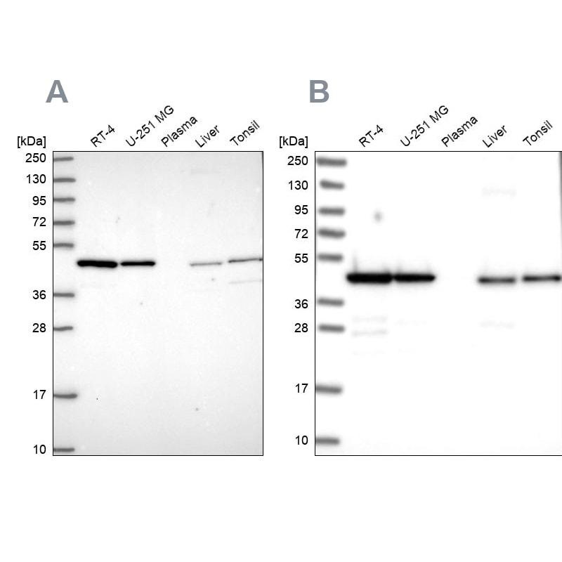 NSFL1C Antibody in Western Blot (WB)