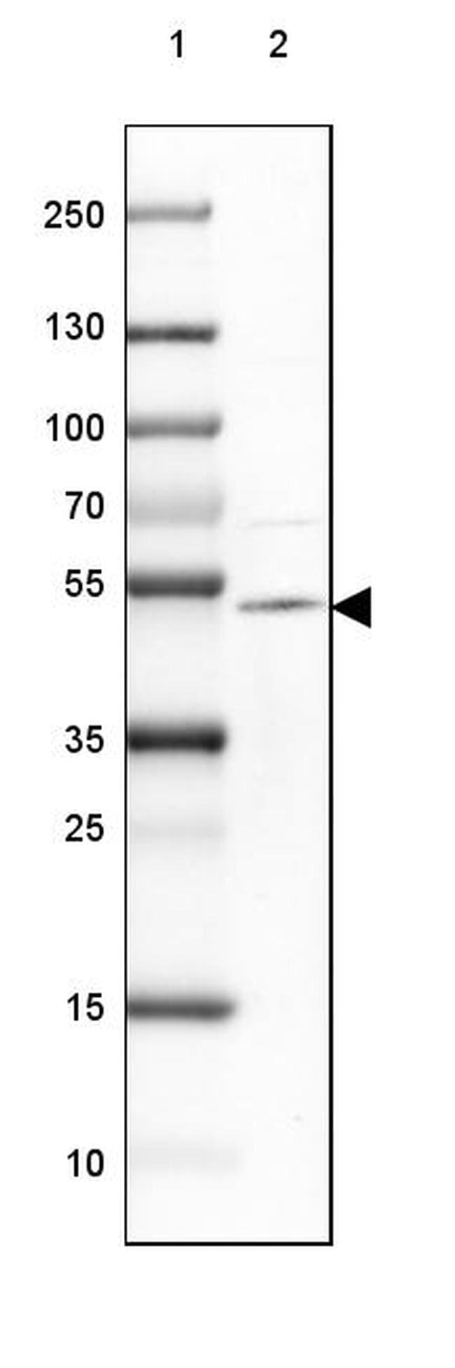 TTYH1 Antibody in Western Blot (WB)