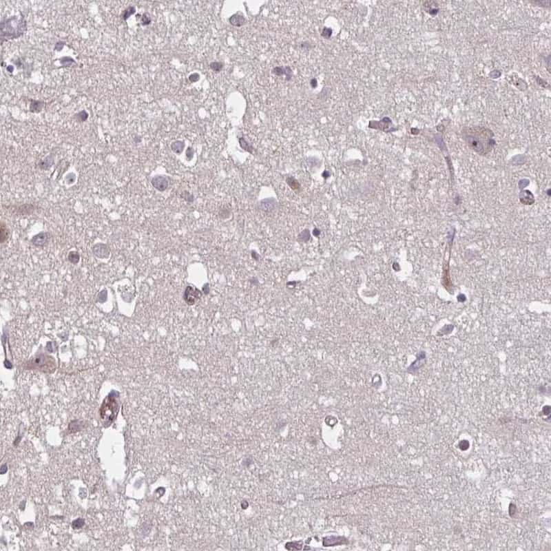 HMBS Antibody in Immunohistochemistry (IHC)