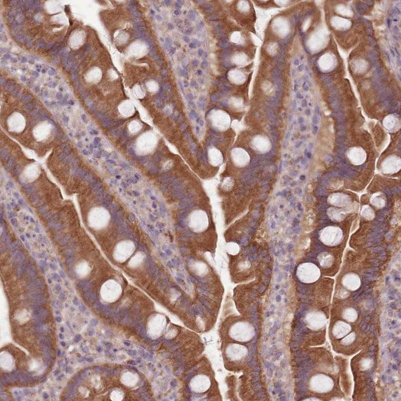 NT5DC2 Antibody in Immunohistochemistry (IHC)