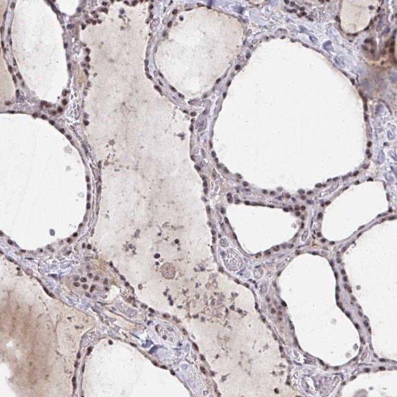HIRA Antibody in Immunohistochemistry (IHC)