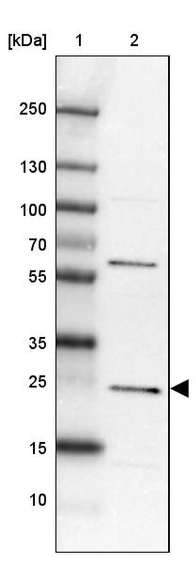 MIF4GD Antibody in Western Blot (WB)