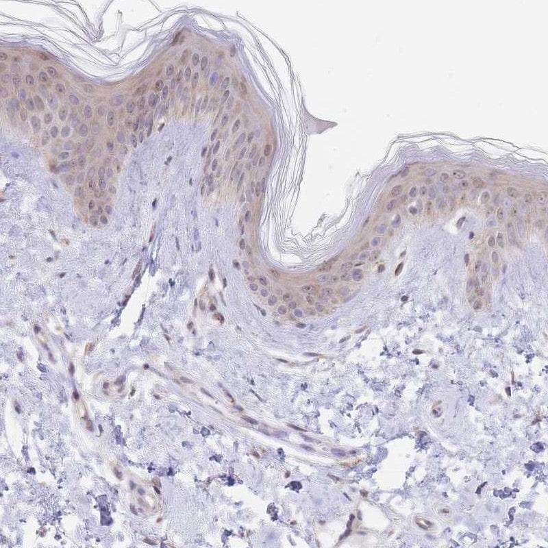 PYHIN1 Antibody in Immunohistochemistry (IHC)
