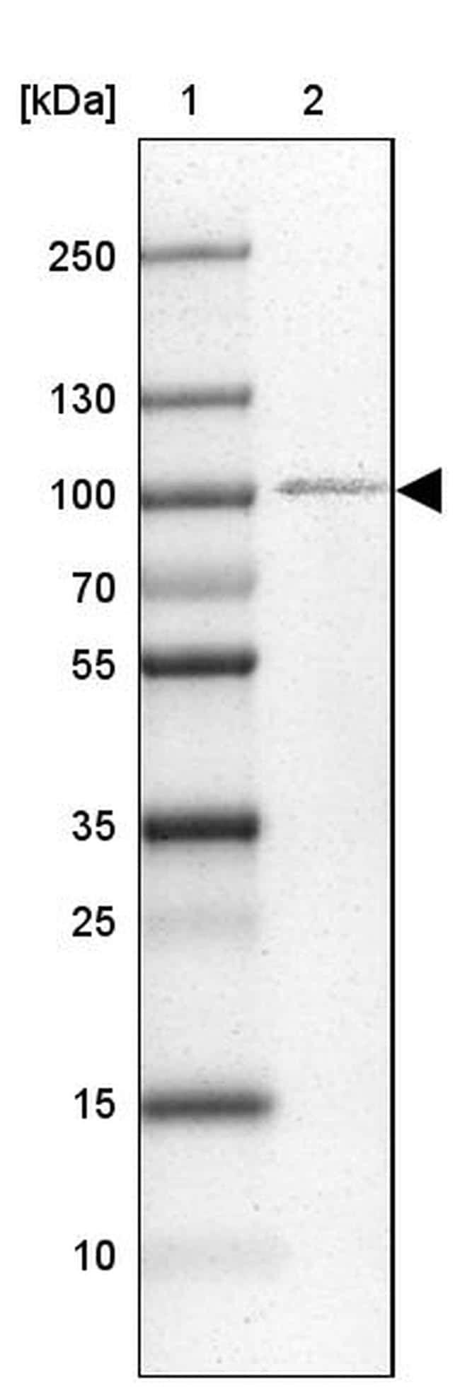 ZNF281 Antibody in Western Blot (WB)