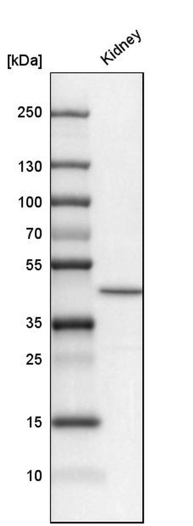 SLC34A1 Antibody in Western Blot (WB)