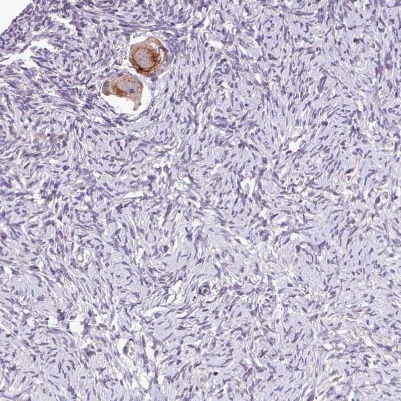 TTLL3 Antibody in Immunohistochemistry (IHC)