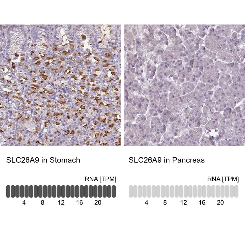 SLC26A9 Antibody in Relative expression