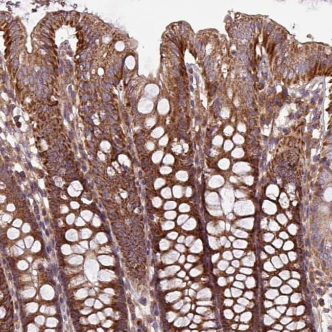 PLEKHD1 Antibody in Immunohistochemistry (IHC)