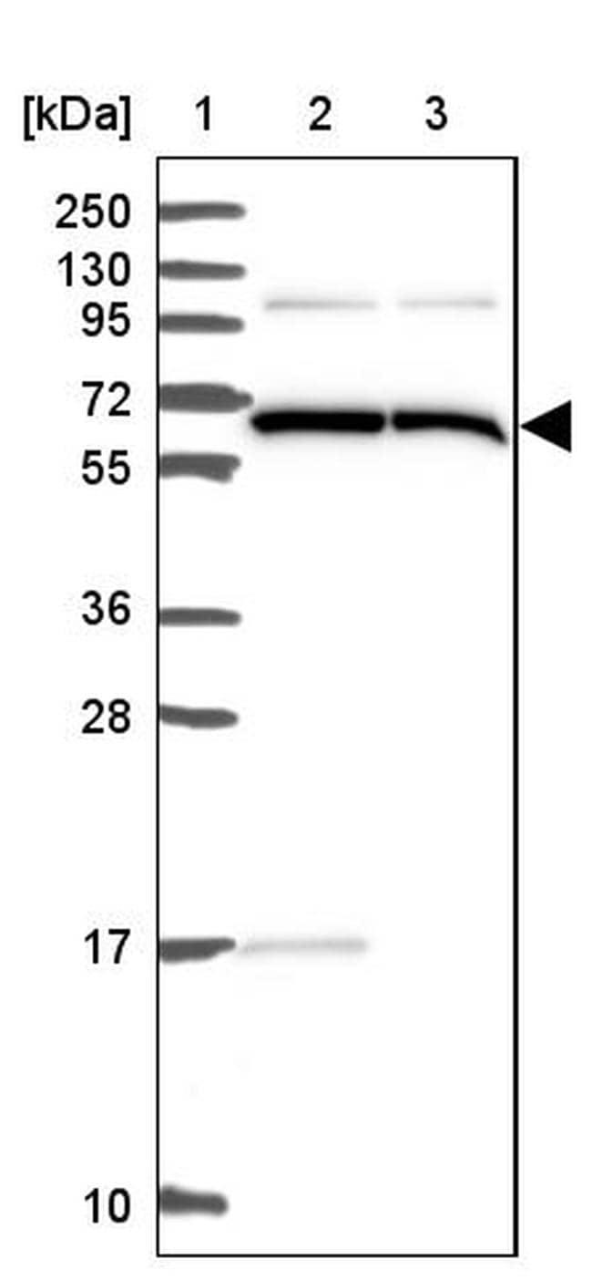 ALG8 Antibody in Western Blot (WB)