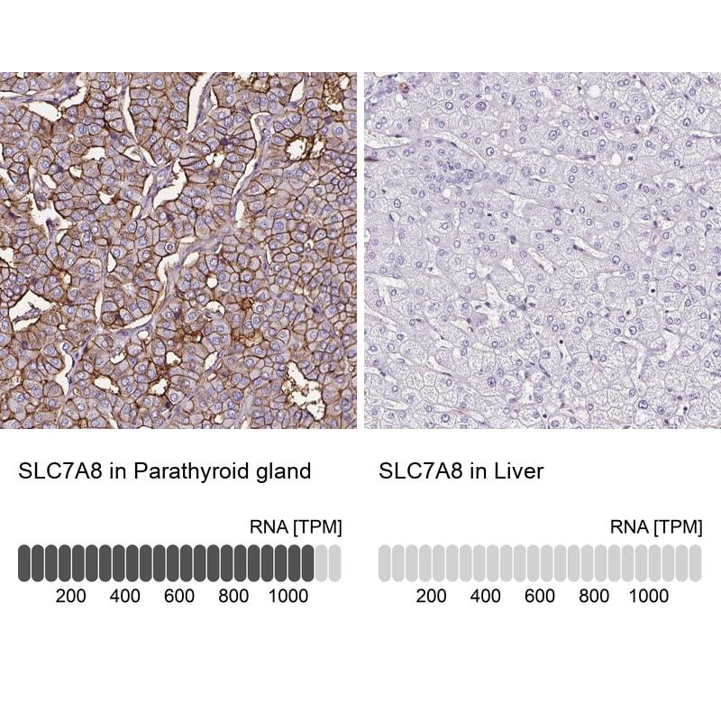 SLC7A8 Antibody in Immunohistochemistry (IHC)
