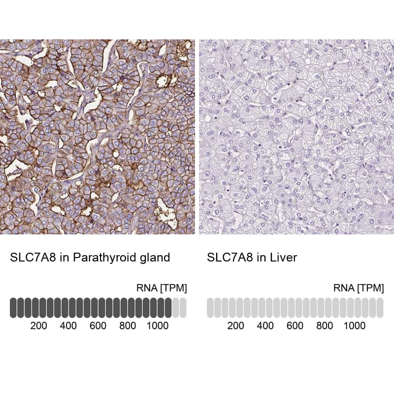 SLC7A8 Antibody in Relative expression