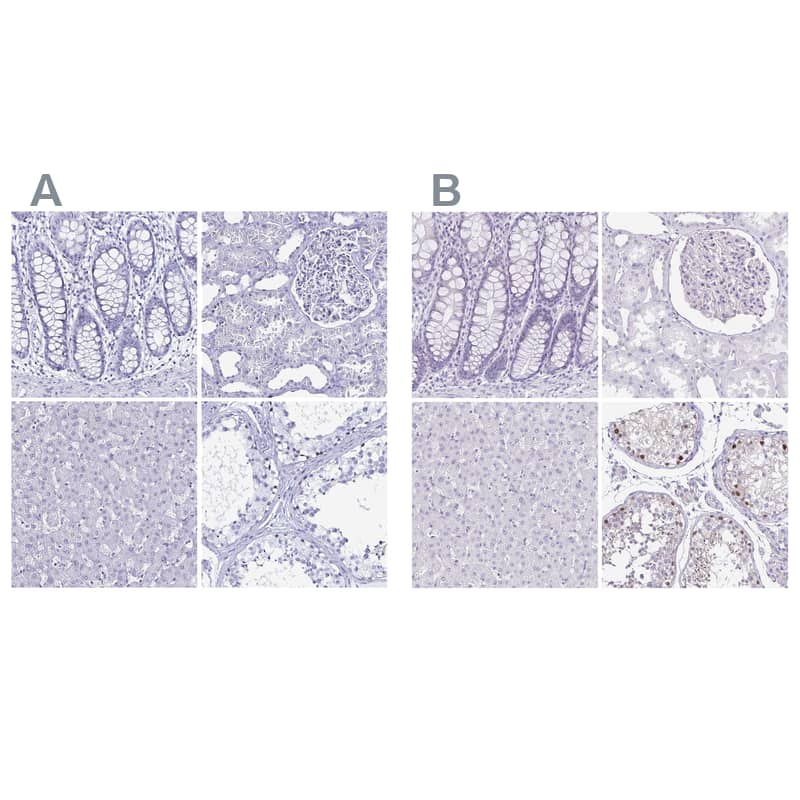 LUZP4 Antibody in Immunohistochemistry (IHC)