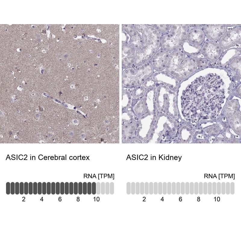 ASIC2 Antibody in Immunohistochemistry (IHC)