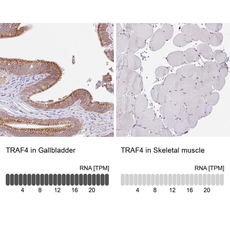 TRAF4 Antibody in Relative expression